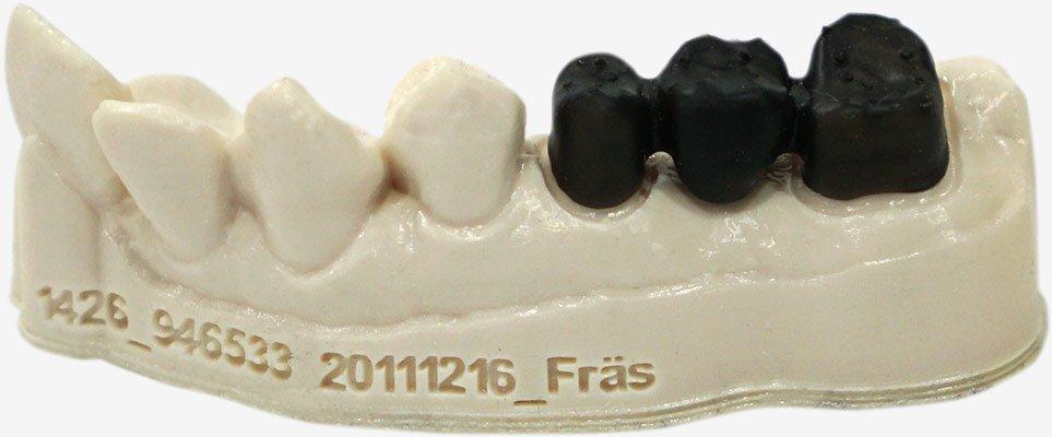 Dental Arch 3 unit Bridge Precision 1